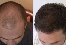 Hair Regrowth